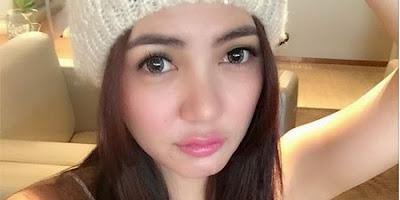 Hmm.. Bella Shofie Akui Operasi Plastik Agar Wajahnya Terlihat Cantik