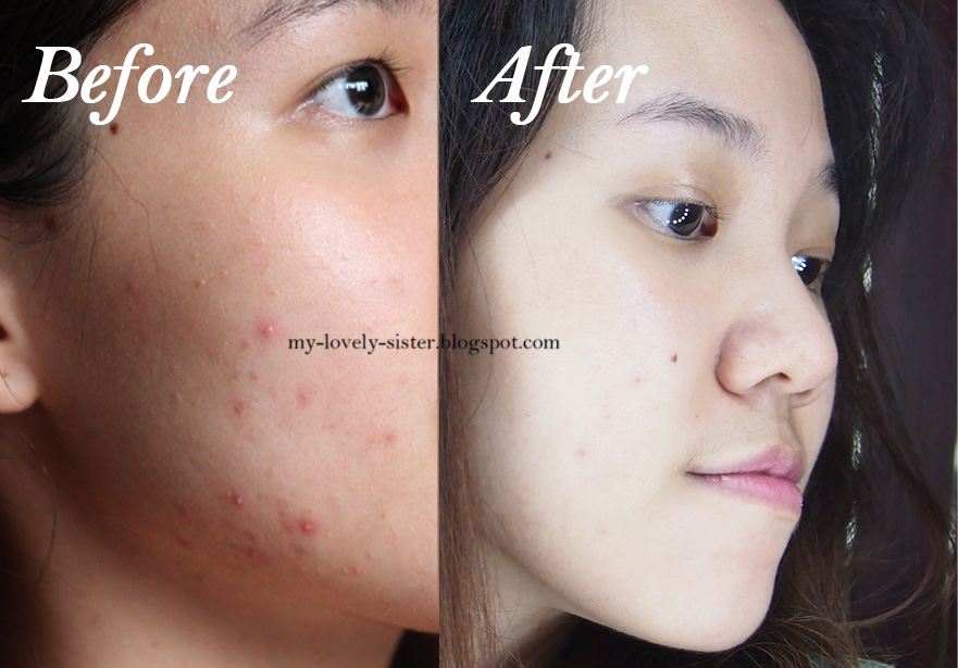 My Lovely Sister A Blog With Love My Acne Story