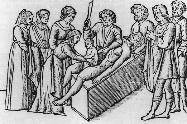 Cesarean Section History