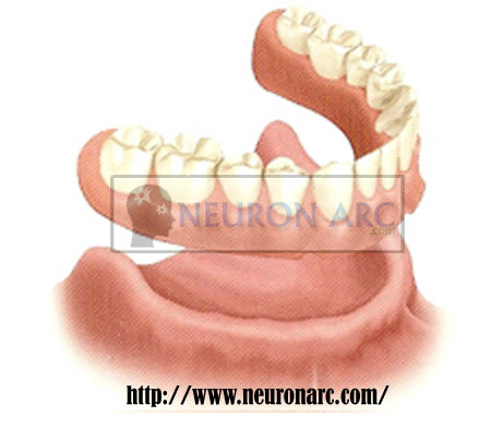 Single complete denture definition,difficulty,factors & method of overcome
