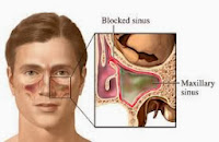 Obat Tradisional Untuk Menyembuhkan Radang Sinus