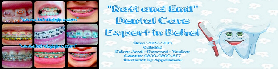 Behel Gigi Rafi Dental Care  0856-9866827