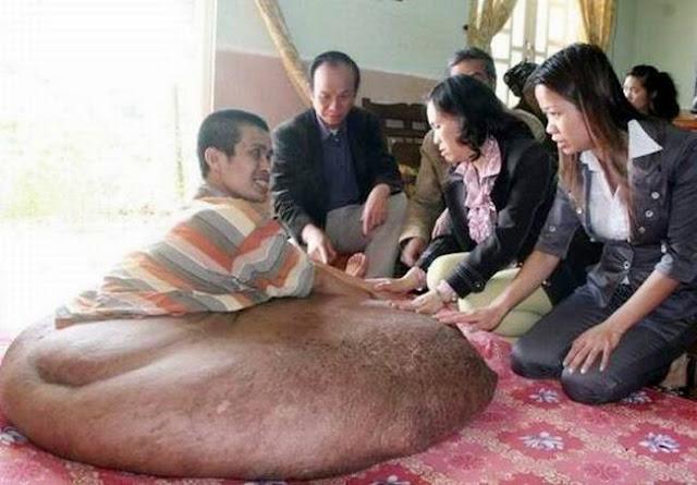 80 Kilogram Tumor