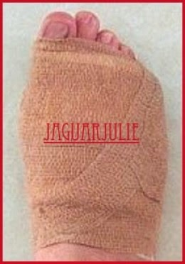 Morton's Neuroma Foot Surgery jaguarjulie right foot bandaged