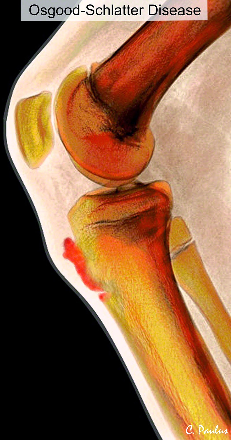 Lateral Color Knee X-Ray Image showing Osgood Schlatter Disease