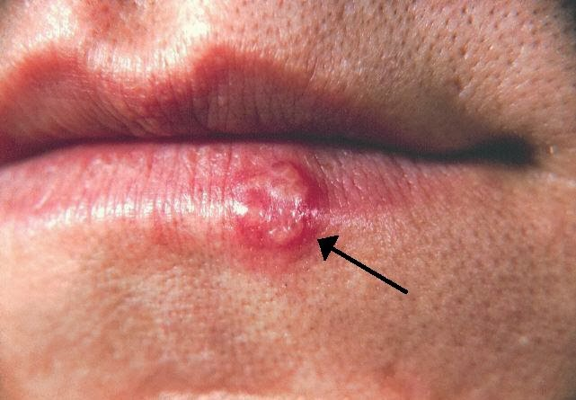 treat cold sore naturally right skin care