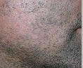 alopecia barbae steroid injections