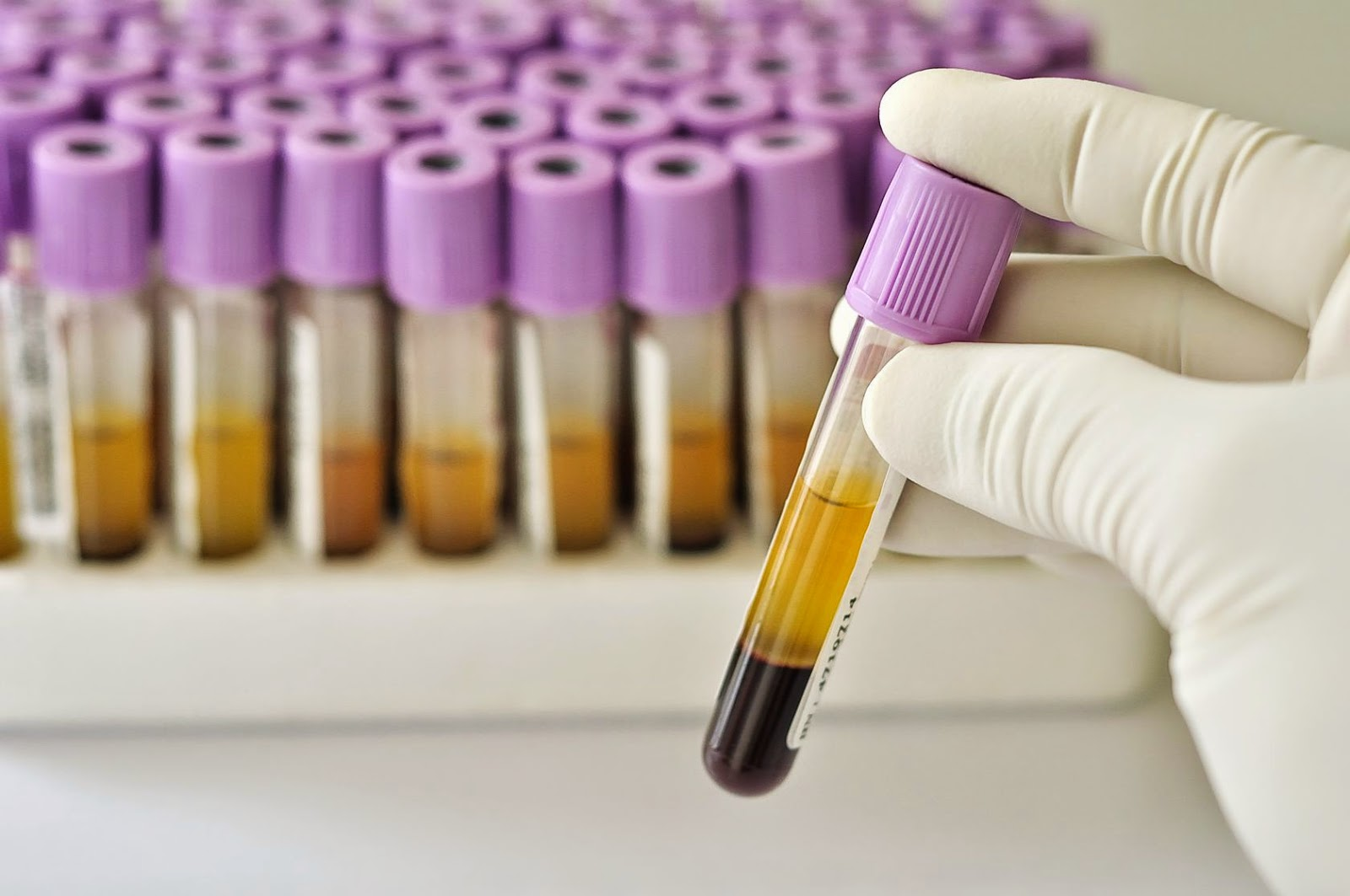 Blood Test For Prostate Cancer