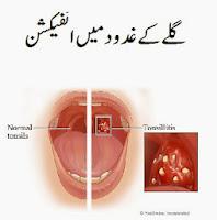 Tonsillitis Treatment