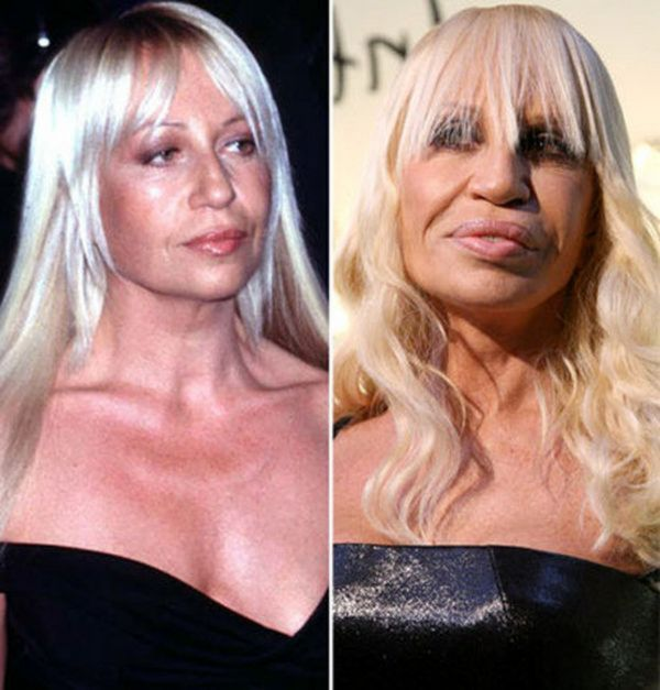Celebrities With Scary Plastic Surgery Faces Cars 2015 Pics Hub