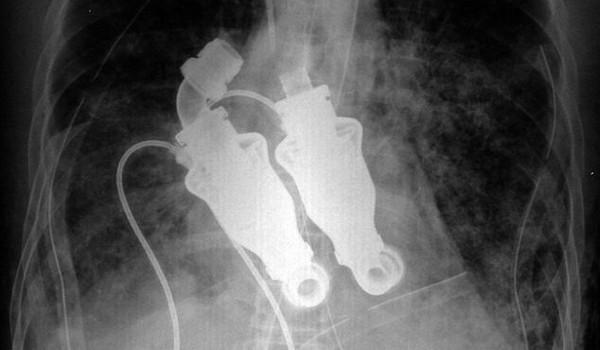 Bombas del corazon artificial