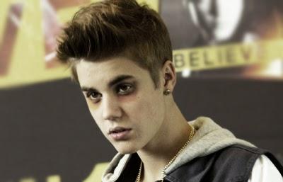 Foto del cantante canadiense Justin Bieber con ojeras y totalmente borracho y drogado | Ximinia