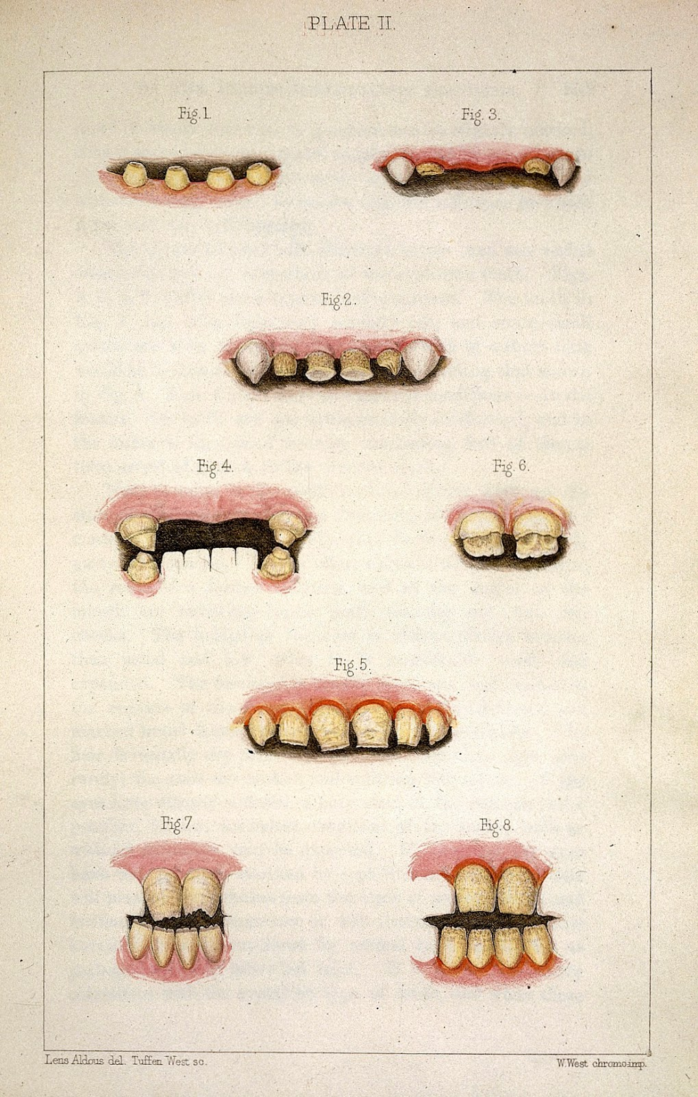 Morbid Anatomy: Obstetrical Phantoms! Dracula and Syphilis ...