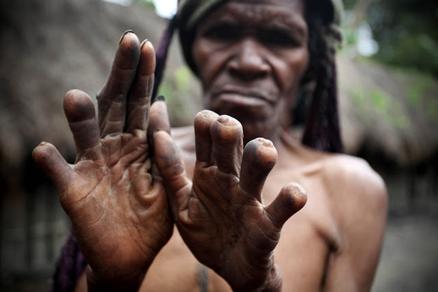 dani tribe women cut their fingers