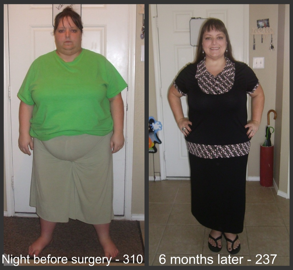 Breast reduction after gastrc bypass surgery