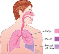 Cancer Of Pleura