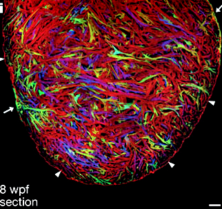 Using Brainbow Zebrafish, the contributions to individual cardiomyocytes to heart morphogenesis are defined