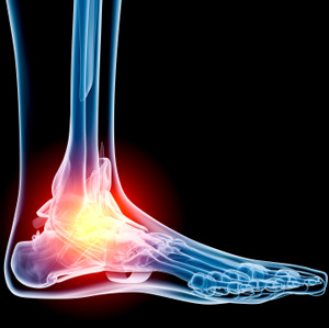 Best Home treatment for ankle pain