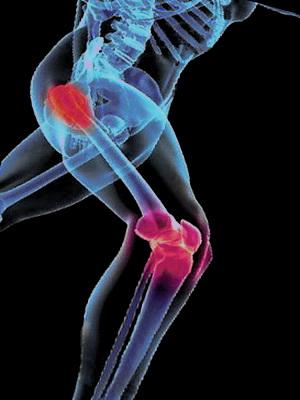 Нетрадиционно лечение на артрит