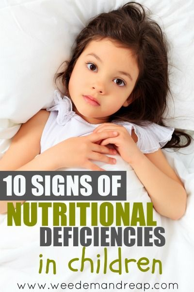 10 Signs of Nutrition Deficiencies in Children