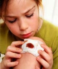 Cara Merawat Luka Berdarah yang Benar