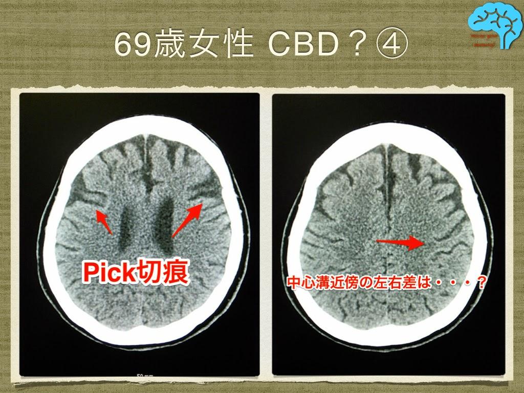 皮質基底核変性症(CBD) ピック切痕 中心溝左右差