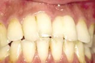 Tooth gemination