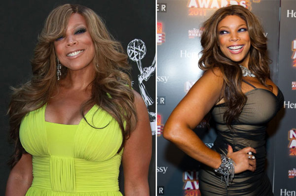 Wendy Williams Plastic Surgery Before and After Breast Implants and