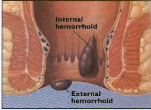 obat herbal ambeien eksternal, cara mengobati wasir dengan obat alami, obat alami untuk menyembuhkan penyakit wasir