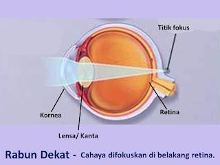 rabun dekat, penyakit mata, mata plus, hipermetropi