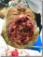 obat alami tumor otak, obat kanker otak, pengobatan kanker otak