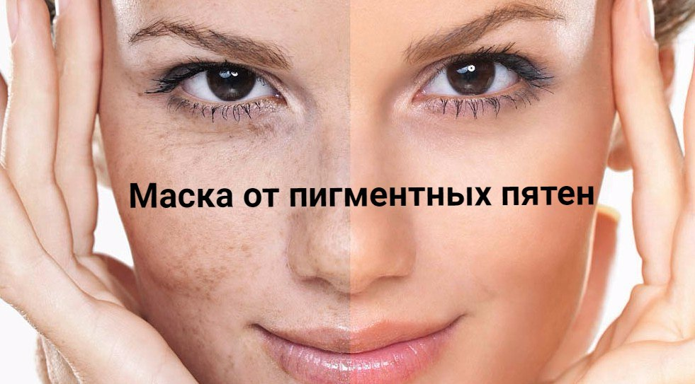 Маска от пигментных пятен на лице в