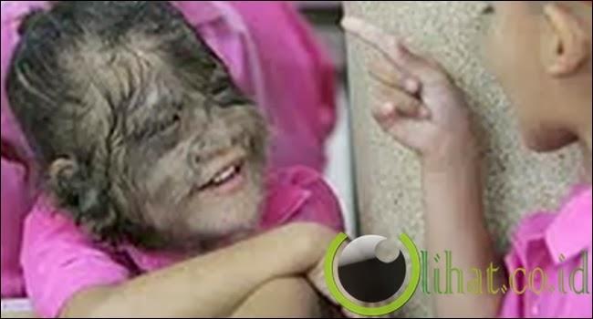 Sindrom Manusia Serigala