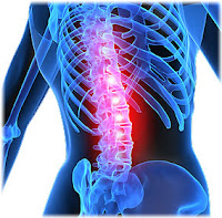 Causes of Back Pain and Relif for Healthy Lifestyle