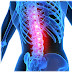 Causes of Back Pain and Relief for Healthy Lifestyle