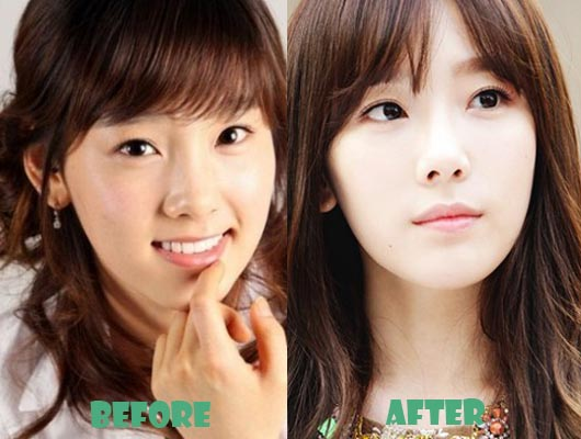 taeyeon snsd celebrities before and after plastic surgery