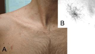 marca angioma, marca higado, señal higado enfermo, araña de angiomas
