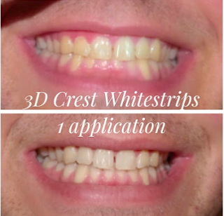 3D Crest Whitestrips.
