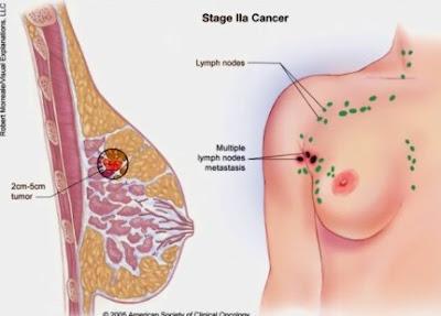 Cara Ampuh Mengobati Kanker Payudara dengan Baking Soda