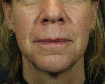 how to get rid of jowls without surgery