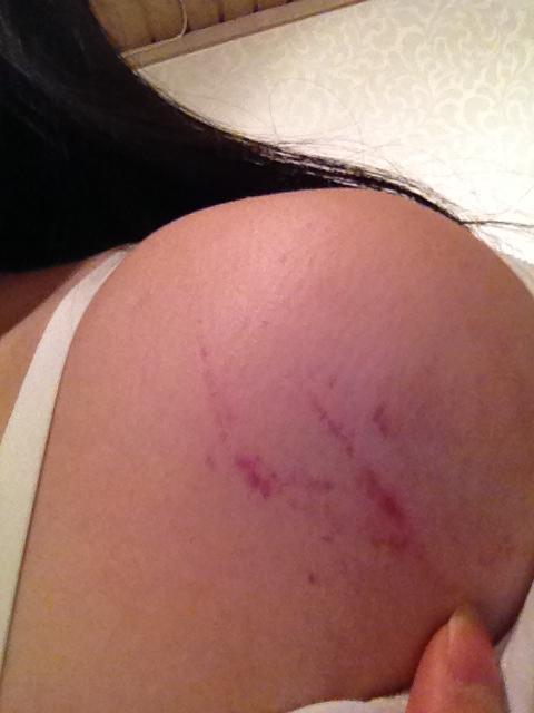 blodutgjutning under huden