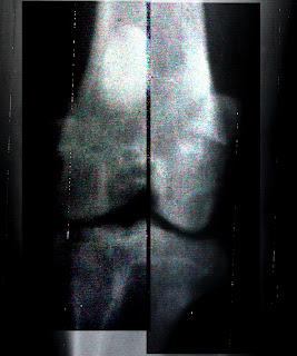 radiografia rodilla artrosis