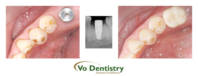 Dental implants, Norcross, Snellville, Grayson, Lawrenceville, ga, georgia