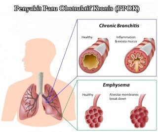 Obat Tradisional Penyakit Paru Obstruktif Kronis PPOK