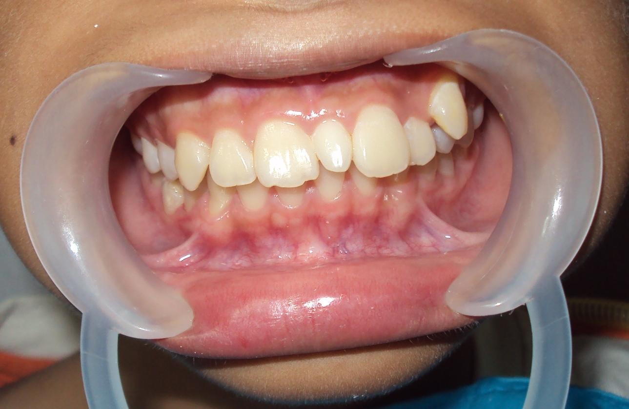 Что сделать перед удалением зуба 26 фотография