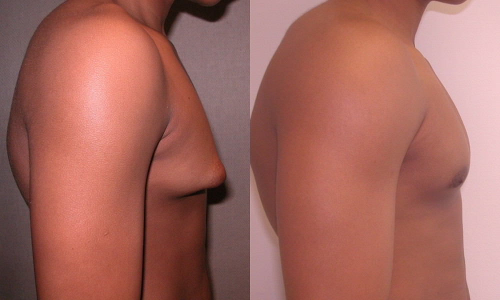 gynecomastia-surgery-before- ...