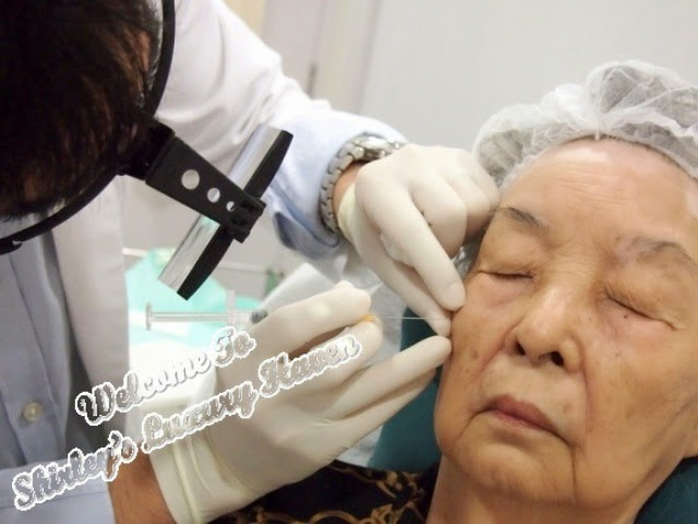 reverse effects of ageing with restylane dermal fillers