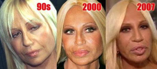 how to make cheeks thinner plastic surgery
