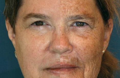 pigmentpletter ansigt