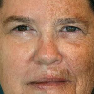 tørbørstning af ansigt
